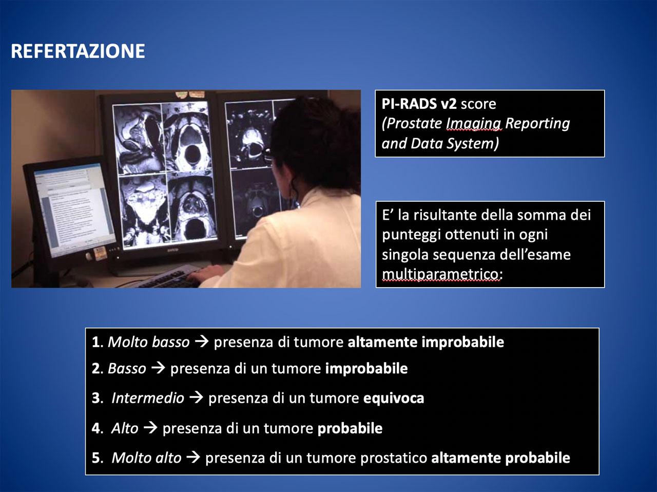 Diagnosi carcinoma prostatico attraverso risonanza magnetica